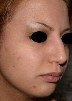 نمونه Chin cosmetic surgery کد 34