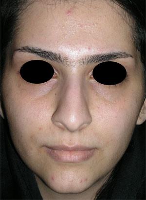 نمونه nose surgery gallery کد 34
