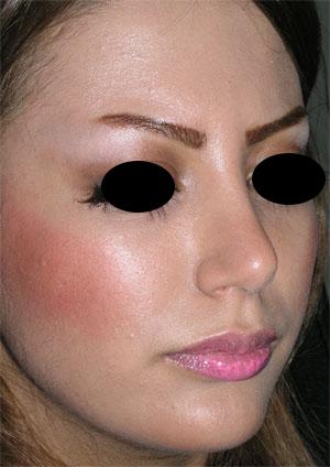 نمونه Chin cosmetic surgery کد 35
