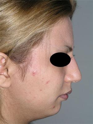 نمونه Chin cosmetic surgery کد 36
