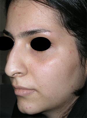نمونه Cosmetic nose surgery کد 36