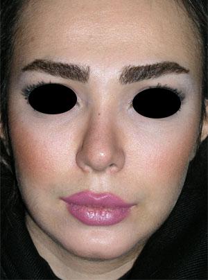 نمونه Chin cosmetic surgery کد 37