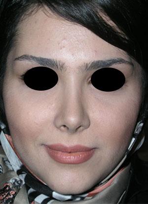 نمونه nose surgery gallery کد 37