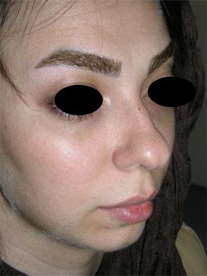 نمونه Chin cosmetic surgery کد 38