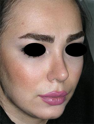 نمونه Chin cosmetic surgery کد 39