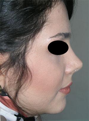 نمونه Cosmetic nose surgery کد 39