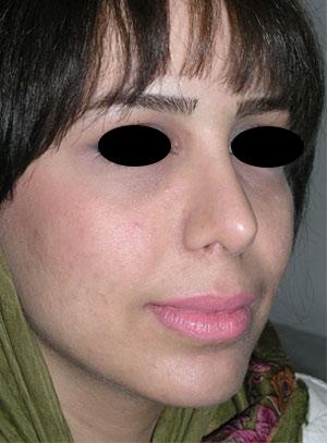 نمونه Chin cosmetic surgery کد 4