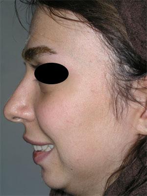 نمونه Chin cosmetic surgery کد 40
