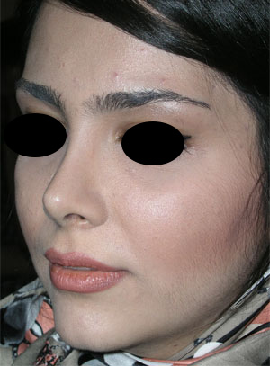 نمونه Cosmetic nose surgery کد 40