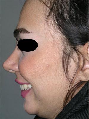 نمونه Chin cosmetic surgery کد 41