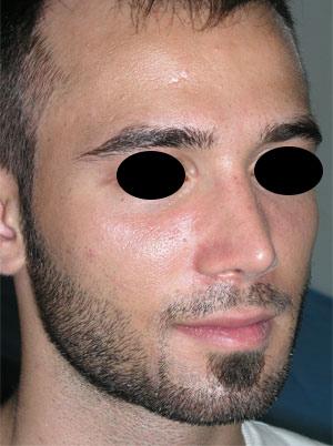 نمونه Cosmetic nose surgery کد 41