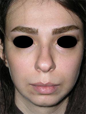 نمونه Chin cosmetic surgery کد 42
