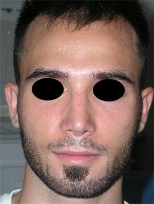 نمونه Fleshy nose کد 42