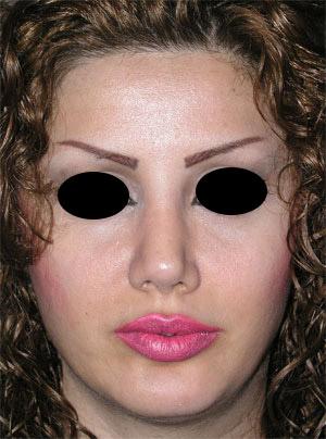 نمونه Chin cosmetic surgery کد 43