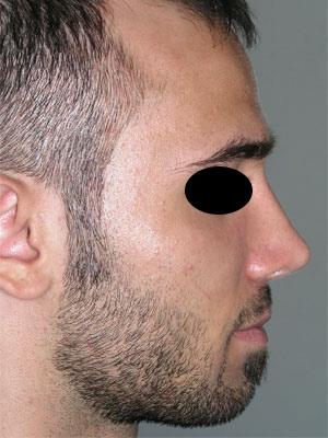 نمونه Cosmetic nose surgery کد 43