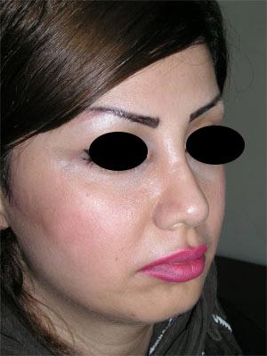 نمونه Chin cosmetic surgery کد 44