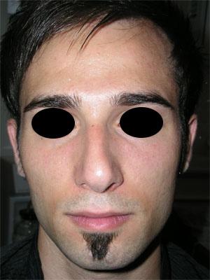 نمونه Fleshy nose کد 44