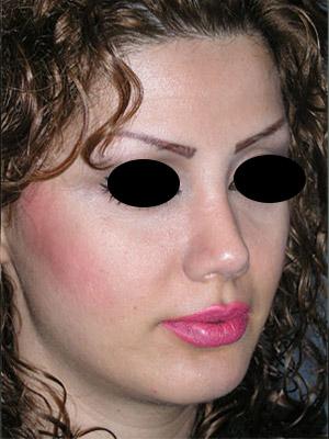 نمونه Chin cosmetic surgery کد 45