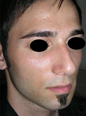 نمونه Cosmetic nose surgery کد 45