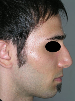 نمونه Cosmetic nose surgery کد 46