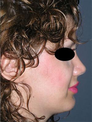 نمونه Chin cosmetic surgery کد 47