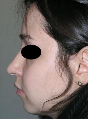 نمونه Cosmetic nose surgery کد 47