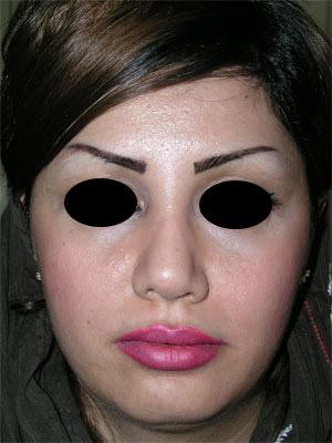 نمونه Chin cosmetic surgery کد 48