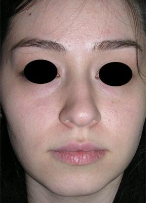 نمونه Cosmetic nose surgery کد 48