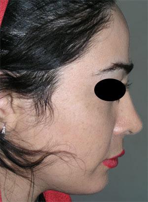 نمونه Chin cosmetic surgery کد 49