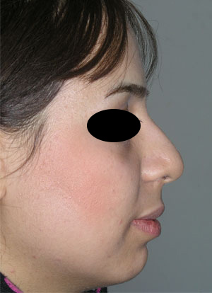 نمونه Chin cosmetic surgery کد 5