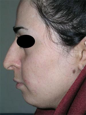 نمونه Chin cosmetic surgery کد 50
