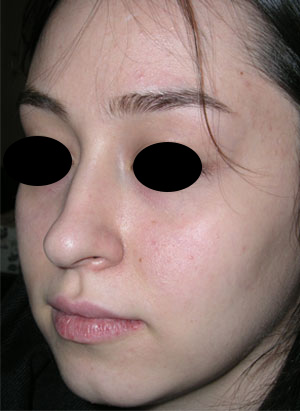 نمونه Cosmetic nose surgery کد 50