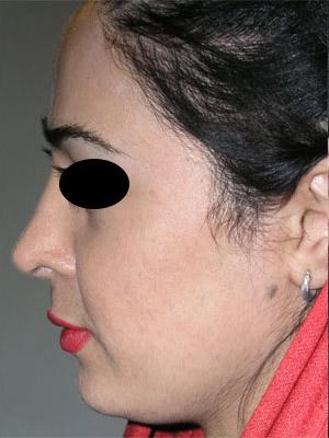 نمونه Chin cosmetic surgery کد 51