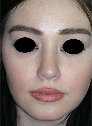 نمونه Cosmetic nose surgery کد 51
