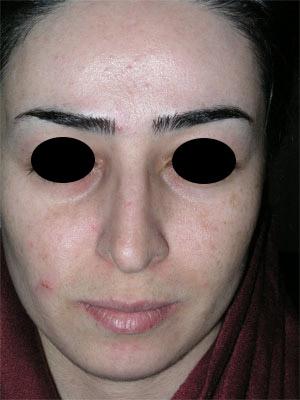 نمونه Chin cosmetic surgery کد 52