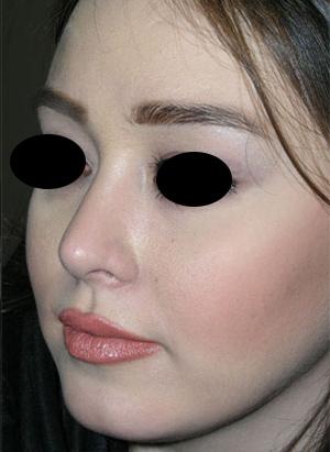 نمونه Cosmetic nose surgery کد 52