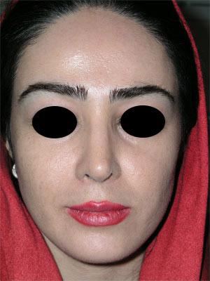 نمونه Chin cosmetic surgery کد 53