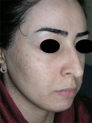 نمونه Chin cosmetic surgery کد 54