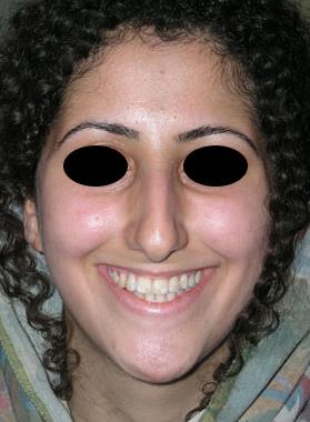 نمونه Cosmetic nose surgery کد 54