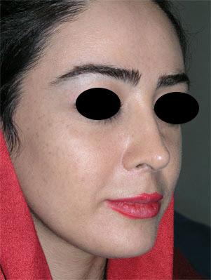 نمونه Chin cosmetic surgery کد 55