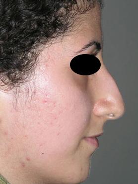 نمونه nose surgery gallery کد 55