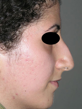 نمونه Cosmetic nose surgery کد 55