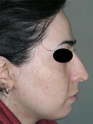 نمونه Chin cosmetic surgery کد 56
