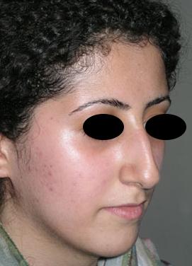 نمونه Cosmetic nose surgery کد 56