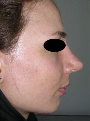 نمونه Chin cosmetic surgery کد 57