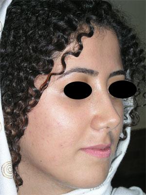 نمونه Cosmetic nose surgery کد 57