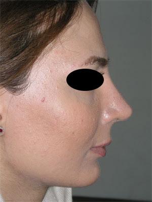 نمونه Chin cosmetic surgery کد 58