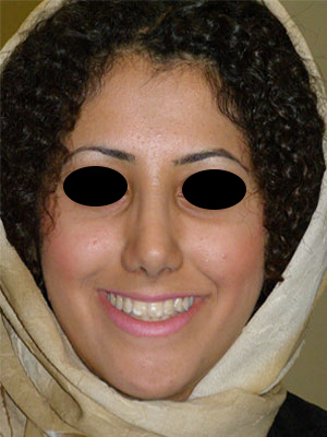 نمونه nose surgery gallery کد 58