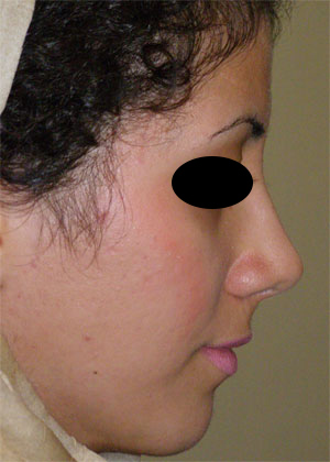 نمونه Cosmetic nose surgery کد 59