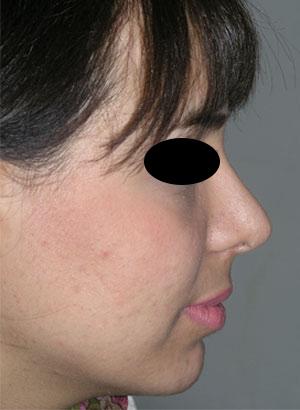 نمونه Chin cosmetic surgery کد 6